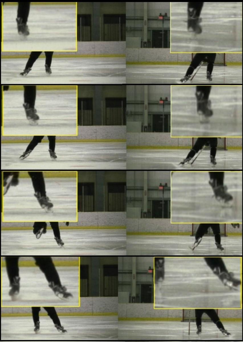 skate-orthotics1